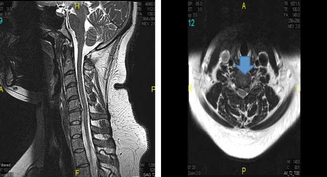 Cervical Herniated Disc New York City Spinal Nerve