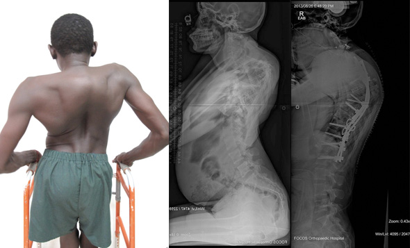 A 15 year old male from Sierra Leone with a 170º proximal thoracic kyphosis due to spinal tuberculosis. Pre and Post operative radiographs following kyphosis correction.